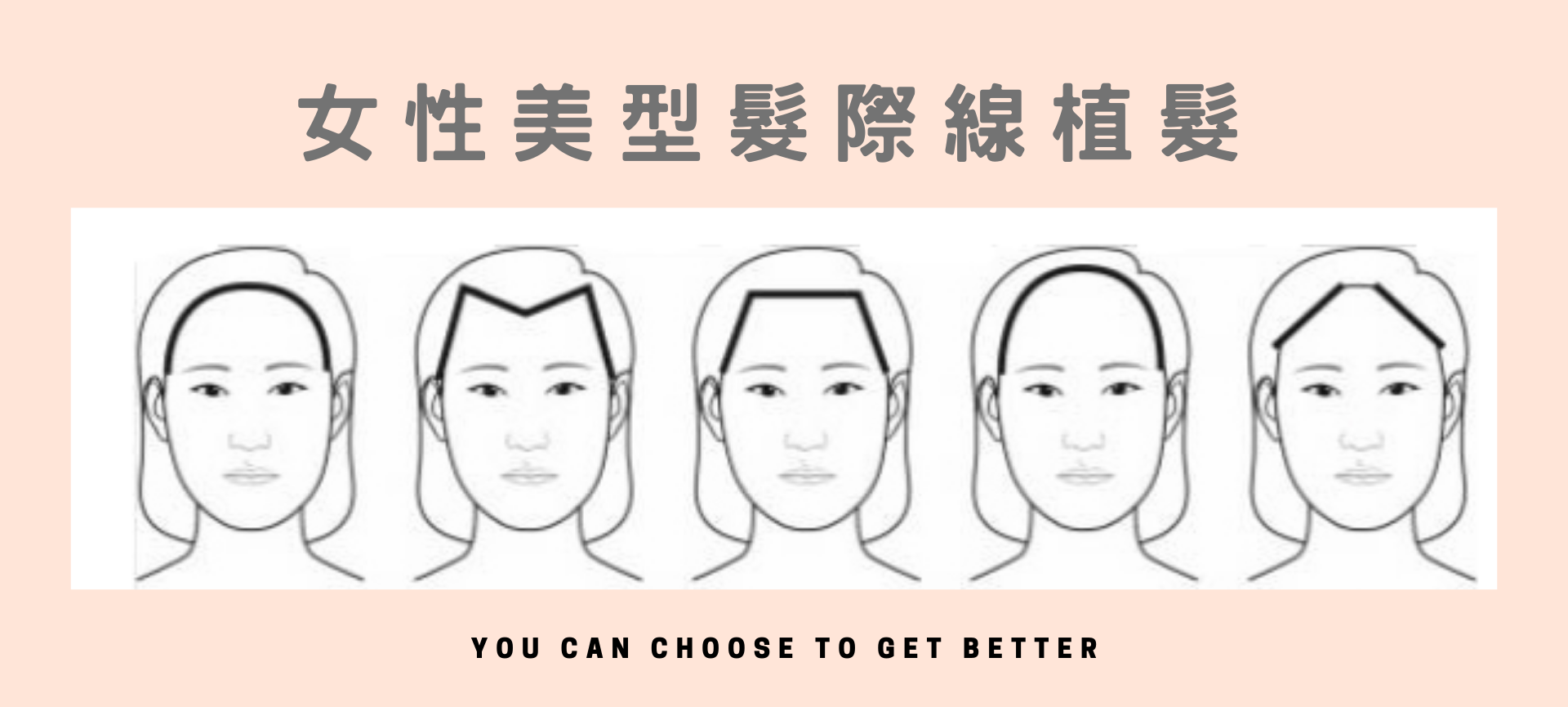女性髮際線